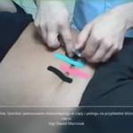 Obejrzyj 26.11 kurs on-line: Szerokie zastosowanie kinesiotapingu w ciąży i okresie okołoporodowym na przykładzie blizny po cesarskim cięciu